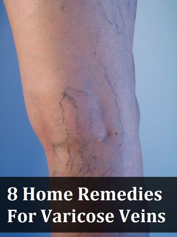 8 Home Remedies For Varicose Veins (Most of these are known, but the ACV and wit...