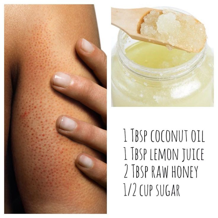Have KP? Keratosis Pilaris occurs when hair follicles are blocked with built up ...