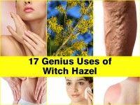 uses-of-witch-hazel
