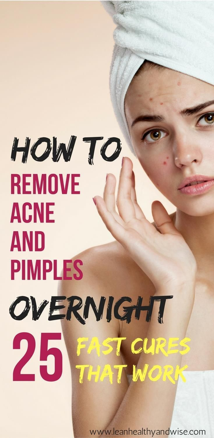 Are you suffering from annoying acne and blemishes? Learn how to get rid of stub...