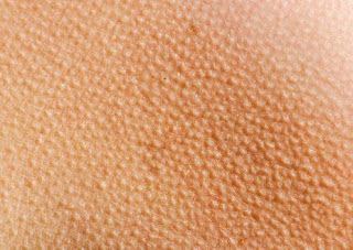 Natural Remedies For Keratosis Pilaris - Getting Rid of Chicken Skin ~Olive oil ...