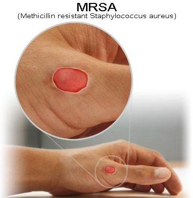 Cure MRSA Naturally