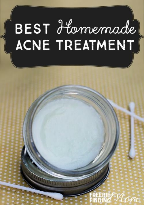 Best Homemade Acne Treatment - Do you suffer from acne? This natural remedy for ...