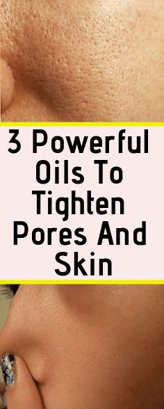 3 Powerful Essential Oils To Tighten Pores And Skin Fast - Natural Home Remedies