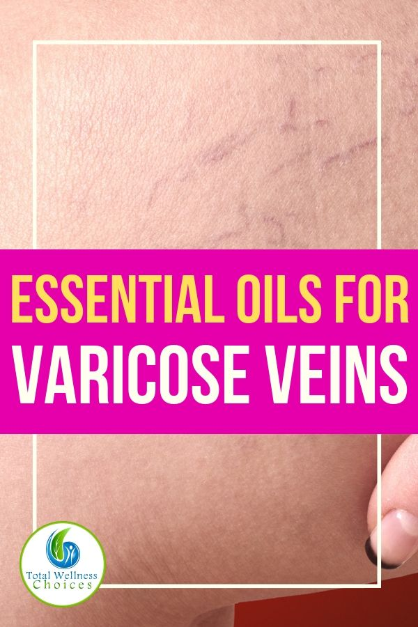 Essential Oils for Varicose Veins!