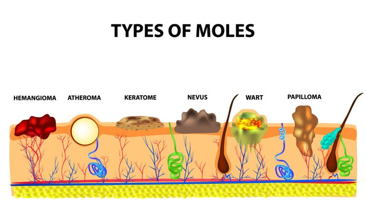 Top 10 Essential Oils and Natural Remedies For Mole Removal
