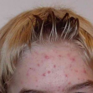 Top 8 vitamin for acne treatment