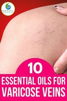 10 Essential Oils for Varicose Veins